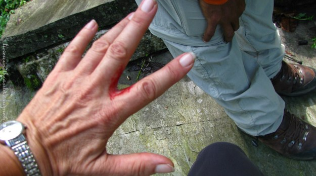 No leech to be seen, but the unstoppable flow of blood a clear sign it was there as some stage...